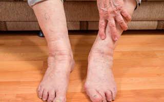 Отеки ног у пожилых людей причины лечение