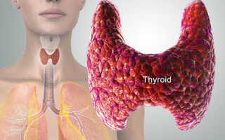 Аутоиммунный тиреоидит как лечить без гормонов