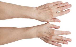 На суставе указательного пальца образовалась шишка чем лечить