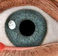 Холодный ячмень у ребенка на глазу лечение
