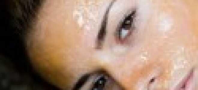 Аллергия после пилинга чем лечить