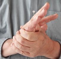 Невроз кожи симптомы и лечение