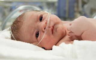 Гипоксия у новорожденного как лечить