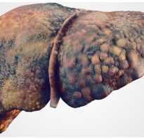 Можно лечить цирроз печени