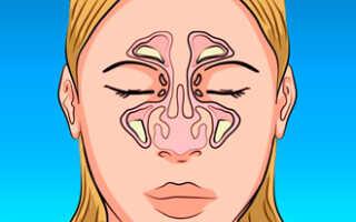 Заложенность носа без насморка ночью причины и лечение