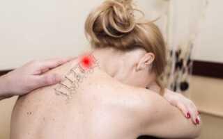Лечение протрузий шейного отдела