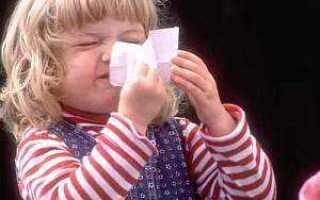 Как лечить аллергический насморк у взрослого?