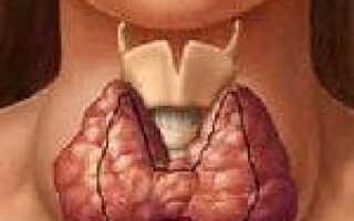 Диффузный токсический зоб болезнь грейвса лечение