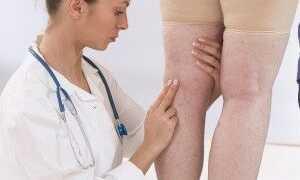 Какой врач лечит тромбоз?