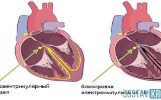 Блокада сердца у детей что это такое и как лечить