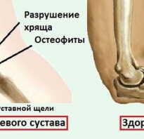 Гонартроз локтевого сустава симптомы и лечение