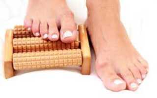 Как лечить плоскостопия?