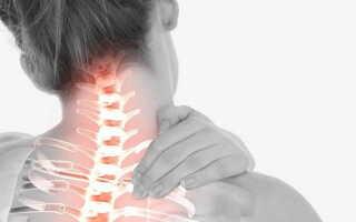 Шейно плечевой остеохондроз лечение