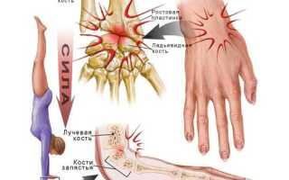 Растяжение связок запястья руки симптомы и лечение