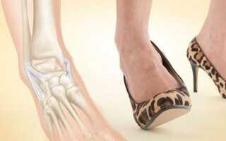 Надрыв связок стопы лечение