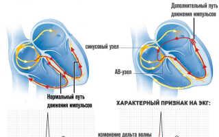 Синдром wpw сердца если не лечить