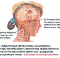 Шейная мигрень симптомы и лечение народными средствами