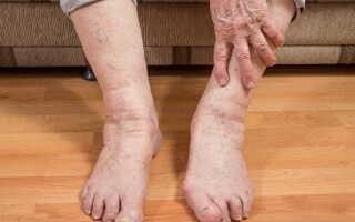 Болят суставы причины и лечение народными средствами
