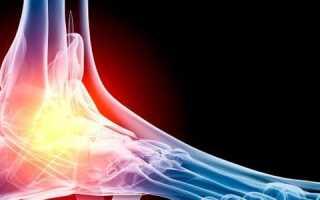 Трещина стопы симптомы лечение