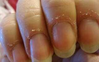 Сухость кожи пальцев рук причины и лечение