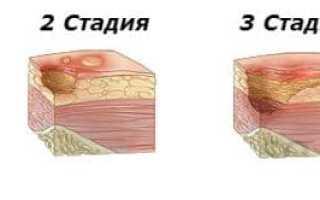 Как лечить язвы на ногах?