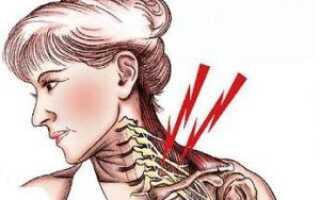 Синдром лестничной мышцы симптомы лечение