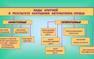 Аритмия причины и способы лечения