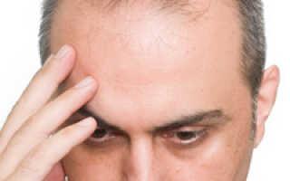 Залысина на затылке у мужчин причины и лечение
