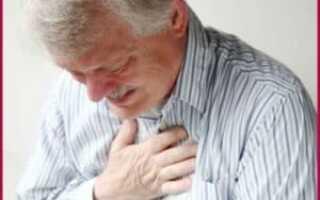 Инфаркт задней стенки сердца последствия и лечение