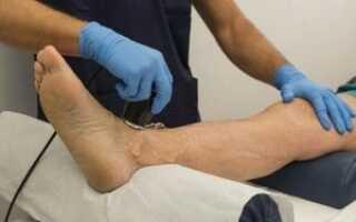 Ультразвук лечение суставов