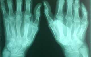 Лечение суставов пальцев
