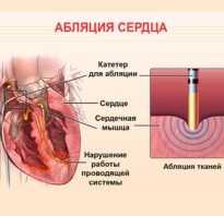 Лечение после рча сердца