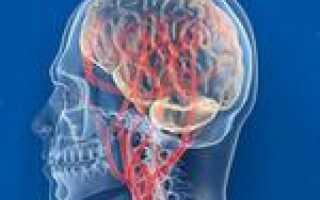 Нарушение мозгового кровообращения симптомы лечение