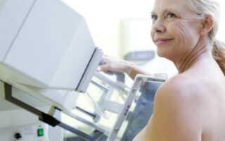 Фиброзные изменения молочных желез лечение