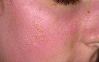 Аллергия на солнце симптомы лечение у взрослых