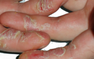 Трескается кожа под ногтями на руках причины и лечение